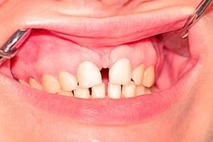 separación de los dientes