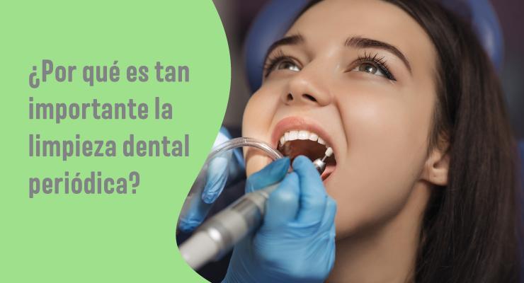 la limpieza dental periodica es fundamental para tu salud bucal