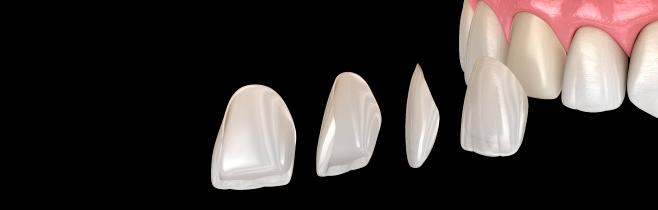 colocar-laminados-ceramicos