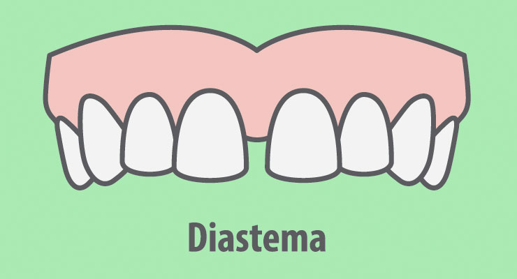 diastema separacion dientes