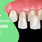 laminados dentales perfectos para tu sonrisa